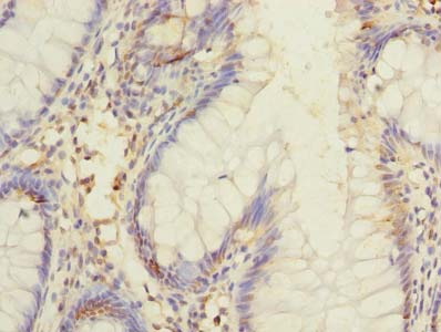 DIS3L Antibody - Immunohistochemistry of paraffin-embedded human colon cancer using antibody at dilution of 1:100.
