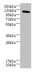 DIS3L Antibody - Western blot All lanes: DIS3L antibody at 6µg/ml Lane 1: Hela whole cell lysate Lane 2: HepG2 whole cell lysate Lane 3: MCF-7 whole cell lysate Secondary Goat polyclonal to rabbit IgG at 1/10000 dilution Predicted band size: 121, 106, 87, 112 kDa Observed band size: 121 kDa