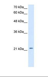 HepG2 cell lysate. Antibody concentration: 2.5 ug/ml. Gel concentration: 12%.  This image was taken for the unconjugated form of this product. Other forms have not been tested.