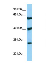 DKK3 antibody LS-C146493 Western blot of 293T Cell lysate. Antibody concentration 1 ug/ml.  This image was taken for the unconjugated form of this product. Other forms have not been tested.