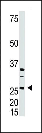 The anti-DKK4 C-term antibody is used in Western blot to detect DKK4 in A375 cell lysate.