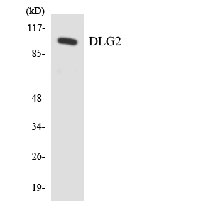 Western blot analysis of the lysates from HeLa cells using DLG2 antibody.