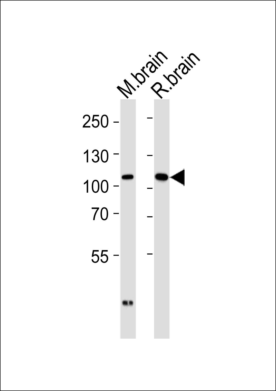 Western blot of tissue lysates from mouse brain and rat brain (from left to right) with DLG2 Antibody. Antibody was diluted at 1:1000 at each lane. A goat anti-rabbit IgG H&L (HRP) at 1:5000 dilution was used as the secondary antibody. Lysates at 35 ug per lane.