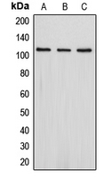 Western blot analysis of PSD93 expression in Jurkat (A); SHSY5Y (B); HepG2 (C) whole cell lysates.