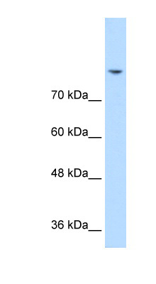 Western blot of Jurkat lysate using Anti-DLG2 Antibody.  This image was taken for the unconjugated form of this product. Other forms have not been tested.