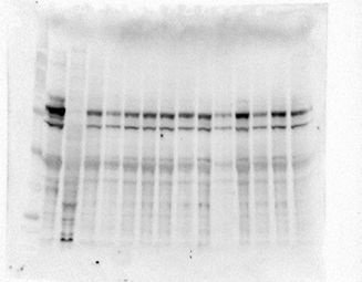 DLG4 / PSD95 Antibody - Detection of PSD95 in piglet hippocampus at 1ug/ml. Lane 1: mw markers, Lane 2: mouse brain, Lane 3: piglet liver, Lanes 4-15: hippocampus of 12 different piglets. Courtesy of S. Fleming, U. of Illinois.