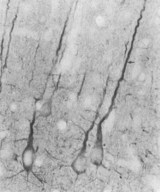 DLG4 / PSD95 Antibody - ICC localization of Psd95 in rat neocortex.