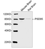 DLG4 / PSD95 Antibody - Western blot analysis of tissue lysates using Rabbit Anti-PSD95 Polyclonal Antibody The signal was developed with IRDye TM 800 Conjugated Goat Anti-Rabbit IgG.Predicted Size: 95 KDObserved Size: 90 KD