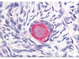 DLL4 Antibody - Affinity Purified anti-Delta-4 antibody was used at 20 µg/ml to detect Delta-4 in a variety of tissues including colon, liver, skeletal muscle, ovary, pancreas, prostate, testes, thymus, tonsil and uterus. In contrast to reported findings, no staining was observed in vascular tissue. This image shows Delta-4 staining of human ovary. Tissue was formalin-fixed and paraffin embedded.