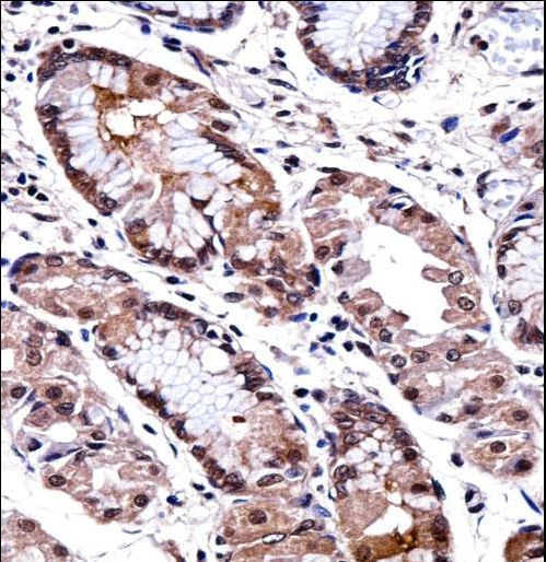 DLX5 Antibody - DLX5 Antibody immunohistochemistry of formalin-fixed and paraffin-embedded human stomach tissue followed by peroxidase-conjugated secondary antibody and DAB staining.