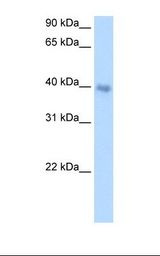 DLX5 Antibody - Transfected 293T cell lysate. Antibody concentration: 1.0 ug/ml. Gel concentration: 12%.  This image was taken for the unconjugated form of this product. Other forms have not been tested.