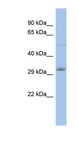 DLX5 antibody Western blot of THP-1 cell lysate. This image was taken for the unconjugated form of this product. Other forms have not been tested.