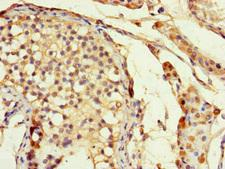 DLX5 Antibody - Immunohistochemistry of paraffin-embedded human testis tissue at dilution of 1:100