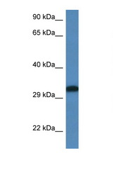 DLX6 antibody Western blot of Rat Muscle lysate. Antibody concentration 1 ug/ml.  This image was taken for the unconjugated form of this product. Other forms have not been tested.