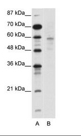 DMAP1 Antibody - A: Marker, B: Jurkat Cell Lysate.  This image was taken for the unconjugated form of this product. Other forms have not been tested.