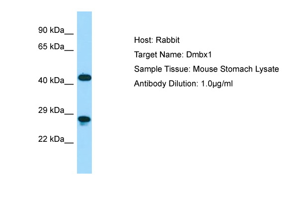 DMBX1 / OTX3 Antibody -  This image was taken for the unconjugated form of this product. Other forms have not been tested.