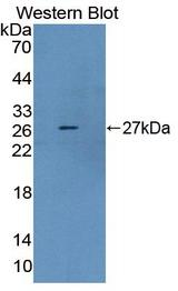 DMD / Dystrophin Antibody - Western Blot; Sample: Recombinant protein.