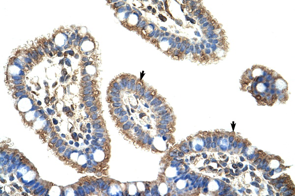 DMTF1 Antibody - DMTF1 antibody ARP34602_P050-EAW76962-DMTF1(cyclin D binding myb-like transcription factor 1) Antibody IHC of formalin-fixed, paraffin-embedded human Intestine. Positive label: Epithelial cells of intestinal villus indicated with arrows. Antibody concentration 4-8 ug/ml. Magnification 400X.  This image was taken for the unconjugated form of this product. Other forms have not been tested.