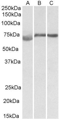 DMTF1 antibody (1 ug/ml) staining of Human (A), Mouse (B) and Rat (C) Testis lysate (35 ug protein in RIPA buffer). Primary incubation was 1 hour. Detected by chemiluminescence.