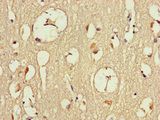 Immunohistochemistry of paraffin-embedded human brain tissue at dilution of 1:100