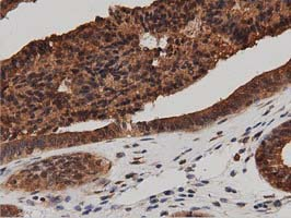 IHC of paraffin-embedded Adenocarcinoma of Human endometrium tissue using anti-DNAJA2 mouse monoclonal antibody. (Dilution 1:50).