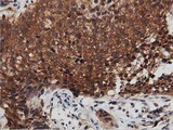 IHC of paraffin-embedded Carcinoma of Human bladder tissue using anti-DNAJA2 mouse monoclonal antibody. (Dilution 1:50).