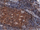 IHC of paraffin-embedded Human lymph node tissue using anti-DNAJA2 mouse monoclonal antibody. (Dilution 1:50).