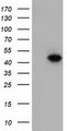 HEK293T cells were transfected with the pCMV6-ENTRY control (Left lane) or pCMV6-ENTRY DNAJA2 (Right lane) cDNA for 48 hrs and lysed. Equivalent amounts of cell lysates (5 ug per lane) were separated by SDS-PAGE and immunoblotted with anti-DNAJA2.