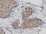 IHC of paraffin-embedded Adenocarcinoma of Human breast tissue using anti-DNAJA2 mouse monoclonal antibody. (Dilution 1:50).