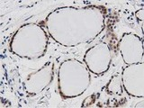 IHC of paraffin-embedded Human thyroid tissue using anti-DNAJA2 mouse monoclonal antibody. (Dilution 1:50).