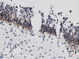 IHC of paraffin-embedded Human bladder tissue using anti-DNAJA2 mouse monoclonal antibody. (Dilution 1:50).