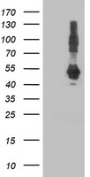 DNAJA2 Antibody - HEK293T cells were transfected with the pCMV6-ENTRY control (Left lane) or pCMV6-ENTRY DNAJA2 (Right lane) cDNA for 48 hrs and lysed. Equivalent amounts of cell lysates (5 ug per lane) were separated by SDS-PAGE and immunoblotted with anti-DNAJA2.