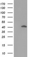 DNAJB1 / Hsp40 Antibody - HEK293T cells were transfected with the pCMV6-ENTRY control (Left lane) or pCMV6-ENTRY DNAJB1 (Right lane) cDNA for 48 hrs and lysed. Equivalent amounts of cell lysates (5 ug per lane) were separated by SDS-PAGE and immunoblotted with anti-DNAJB1.