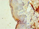 Immunohistochemistry of paraffin-embedded human skin tissue using antibody at 1:100 dilution.  This image was taken for the unconjugated form of this product. Other forms have not been tested.