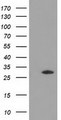 HEK293T cells were transfected with the pCMV6-ENTRY control (Left lane) or pCMV6-ENTRY DNAJB2 (Right lane) cDNA for 48 hrs and lysed. Equivalent amounts of cell lysates (5 ug per lane) were separated by SDS-PAGE and immunoblotted with anti-DNAJB2.