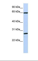 DNAJC1 Antibody - MCF7 cell lysate. Antibody concentration: 1.0 ug/ml. Gel concentration: 12%.  This image was taken for the unconjugated form of this product. Other forms have not been tested.