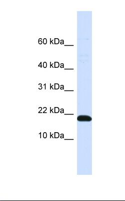 Placenta lysate. Antibody concentration: 1.0 ug/ml. Gel concentration: 10-20%.  This image was taken for the unconjugated form of this product. Other forms have not been tested.