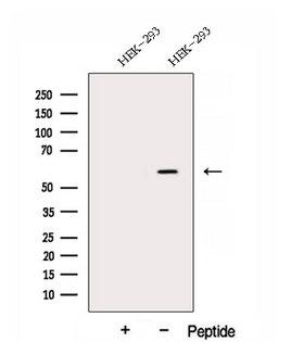 DNAJC7 Antibody - Western blot analysis of extracts of HEK293 cells using DNAJC7 antibody. The lane on the left was treated with blocking peptide.
