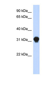 DNALI1 antibody Western blot of Transfected 293T cell lysate. This image was taken for the unconjugated form of this product. Other forms have not been tested.