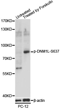 DNM1L / DRP1 Antibody - Western blot analysis of extracts of PC-12 cells, using Phospho-DNM1L-S637 antibody at 1:1000 dilution. PC-12 cells were treated by Forskolin (30uM) for 30 minutes. The secondary antibody used was an HRP Goat Anti-Rabbit IgG (H+L) at 1:10000 dilution. Lysates were loaded 25ug per lane and 3% nonfat dry milk in TBST was used for blocking. Blocking buffer: 3% BSA.An ECL Kit was used for detection and the exposure time was 20s.