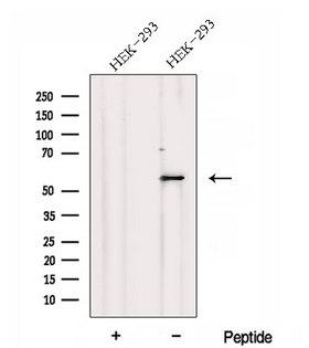 DNPEP Antibody - Western blot analysis of extracts of HEK293 cells using DNPEP antibody. The lane on the left was treated with blocking peptide.