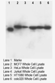 DNTT / TdT Antibody -  This image was taken for the unconjugated form of this product. Other forms have not been tested.