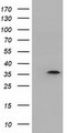 HEK293T cells were transfected with the pCMV6-ENTRY control (Left lane) or pCMV6-ENTRY DNTTIP1 (Right lane) cDNA for 48 hrs and lysed. Equivalent amounts of cell lysates (5 ug per lane) were separated by SDS-PAGE and immunoblotted with anti-DNTTIP1.
