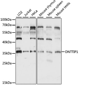 DNTTIP1 / TDIF1 Antibody - Western blot analysis of extracts of various cell lines, using DNTTIP1 antibody at 1:1000 dilution. The secondary antibody used was an HRP Goat Anti-Rabbit IgG (H+L) at 1:10000 dilution. Lysates were loaded 25ug per lane and 3% nonfat dry milk in TBST was used for blocking. An ECL Kit was used for detection and the exposure time was 5S.