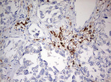 IHC of paraffin-embedded Carcinoma of Human pancreas tissue using anti-DOCK2 mouse monoclonal antibody. (Heat-induced epitope retrieval by 10mM citric buffer, pH6.0, 120°C for 3min).
