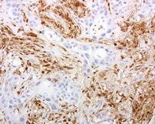 DOCK2 Antibody - Immunohistochemical staining of paraffin-embedded human lung cancer using anti-DOCK2 clone UMAB142 mouse monoclonal antibody at 1:200 dilution of 1.0 mg/mL using Polink2 Broad HRP DAB for detection.requires HIER with with citrate pH6.0 at 110C for 3 min using pressure chamber/cooker. IHC staining shows tumor cells are negative however infiltrating lymphocytes strongly positive.