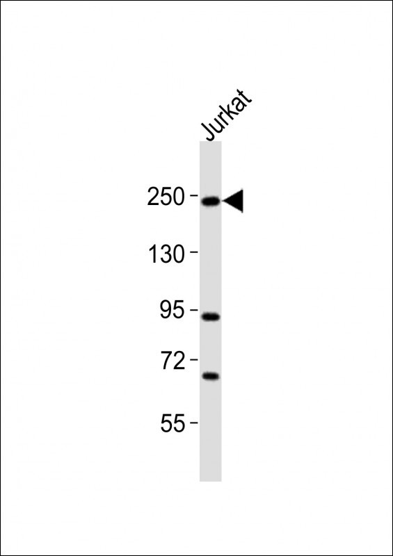 Anti-DOCK2 Antibody at 1:2000 dilution + Jurkat whole cell lysates Lysates/proteins at 20 ug per lane. Secondary Goat Anti-Rabbit IgG, (H+L), Peroxidase conjugated at 1/10000 dilution Predicted band size : 212 kDa Blocking/Dilution buffer: 5% NFDM/TBST.