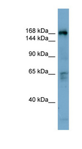 DOCK2 antibody Western blot of THP-1 cell lysate. This image was taken for the unconjugated form of this product. Other forms have not been tested.