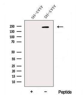 DOCK3 Antibody - Western blot analysis of extracts of SH-SY5Y cells using DOCK3;MOCA antibody. The lane on the left was treated with blocking peptide.