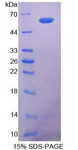 COL1A2 / Collagen I Alpha 2 Protein - Recombinant  Collagen Type I Alpha 2 By SDS-PAGE